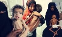 مسؤول أممي: اليمن على شفا كارثة والبشرية يجب أن تخجل من نفسها!