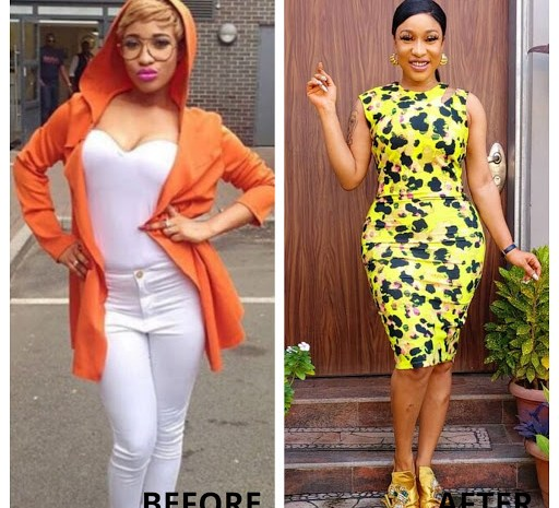 See The Before And After Surgery Photos of Top Nollywood  In Nigeria