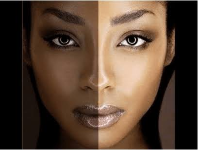 5 Things You Should Know Before Bleaching Your Skin