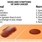 Types of Cancer – Common Myths and Facts