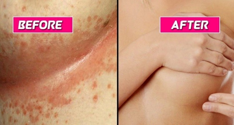 Yeast Infections on Breasts