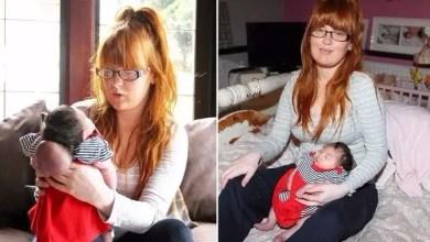 Photo of وفاة طفلة بريطانية ولدت و دماغها خارج جمجمتها
