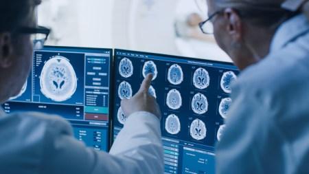 MRI in Mobile, AL