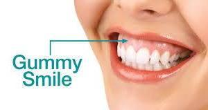 من أسباب الابتسامة اللثوية وكيفية العلاج