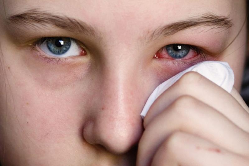 أعراض الإصابة بفيروس كورونا