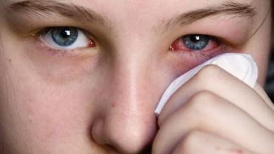 Photo of هذه المرة في «العينين».. أعراض جديدة تُشير إلى الإصابة بفيروس كورونا
