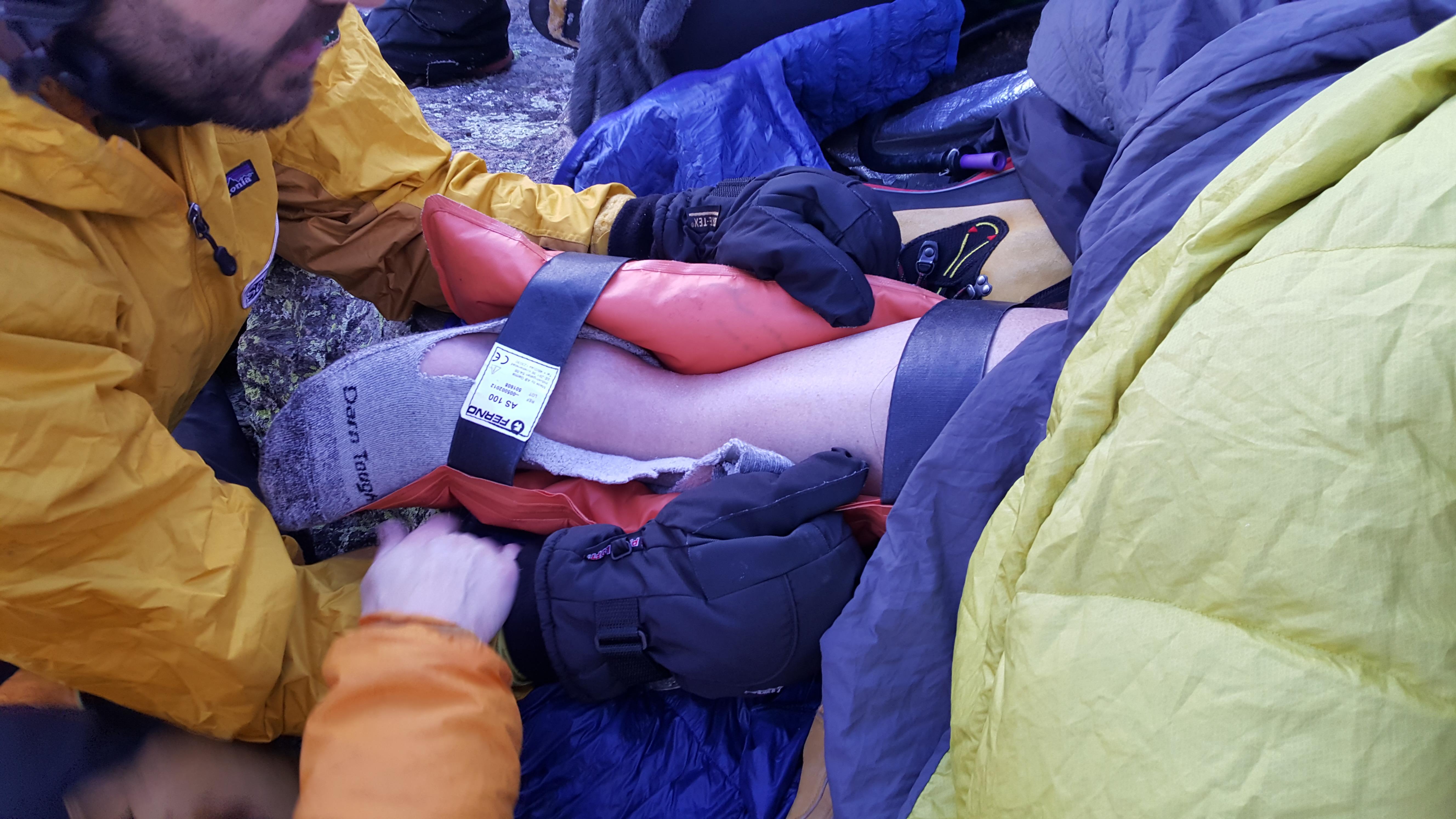 Alan Broken leg picture with splint