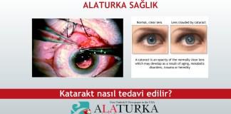 Katarak Hastaligi Nasil Tedavi Edilir