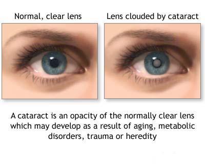 katarakt-hastaligi