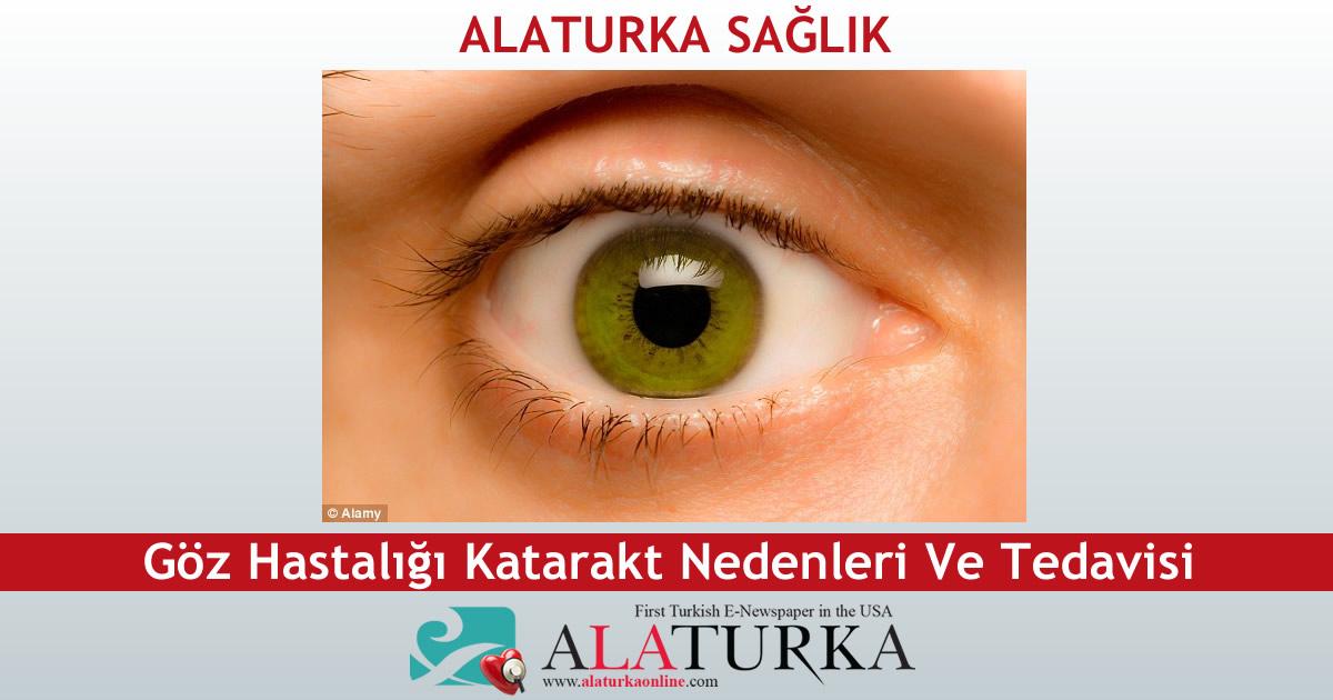 Göz Hastalığı Katarakt Nedenleri Ve Tedavisi