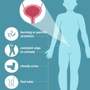 اعراض التهاب المسالك البولية وكيف تكون العدوى وكيف يكون العلاج