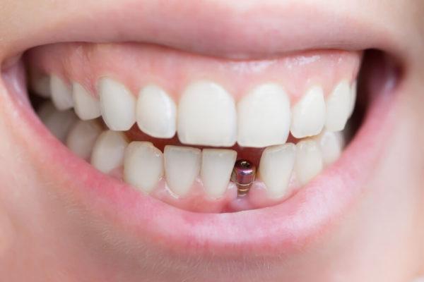افضل عيادات اسنان بجدة  و بالمدينة المنورة