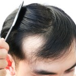 اوراق الكاري للشعر تجربتي في علاج الشيب وتساقط الشعر