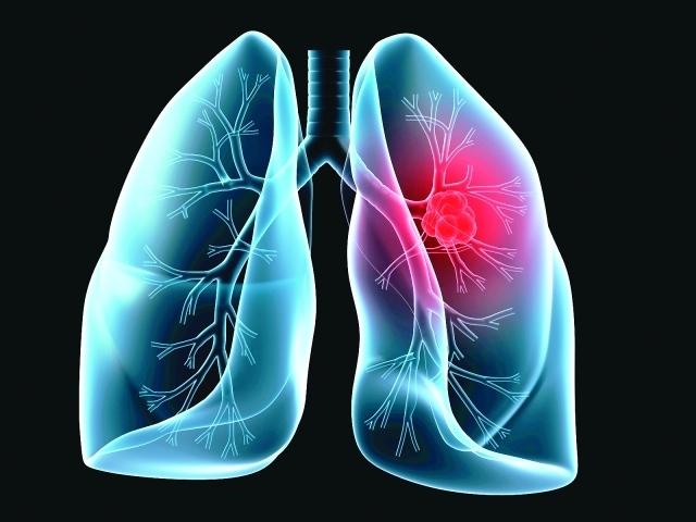 77 من مرضى سرطان الرئة يجهلون علاماته عبر الإمارات أخبار وتقارير البيان