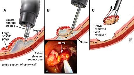 A, B, C, tecnica endoscopica per la polipectomia assistita da iniezione di soluzione salina; B ', corrispondente visione endoscopica.
