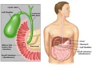 alcohol and gallbladder cancer