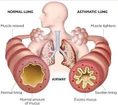 asthma reduced by drinking
