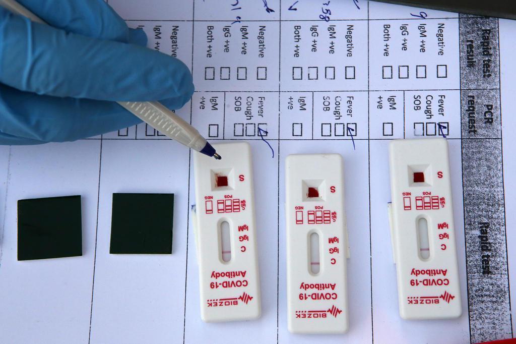 Estudo questiona uso de testes rápidos para diagnóstico de covid-19