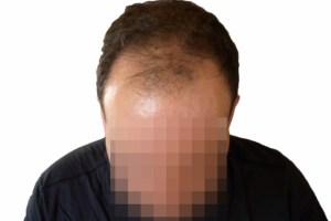 Før hårtransplantation hos Alfa Omega Klinikken