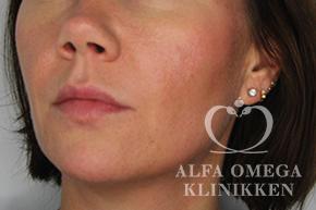 Før behandling af træt og trist hud i ansigtet