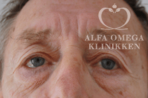 Før øjenlågsløft / før operation af tunge nedre øjenlåg