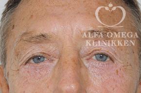 Efter øjenlågsløft / operation af øvre og nedre øjenlåg