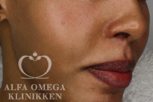 Før Zo Skin Health peeling mod pigmentforandringer hos Alfa Omega Klinikken i København