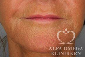 Efter hollywood lift og fjernelse af løs hud i ansigtet