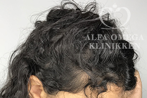 Efter behandling med Rephair til tyndt hår