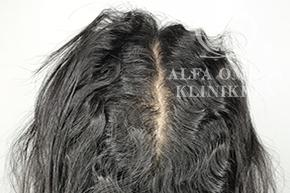 Efter behandling med Rephair til hår vækst