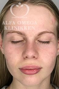 Efter Kleresca-behandling mod acne og ar i ansigtet