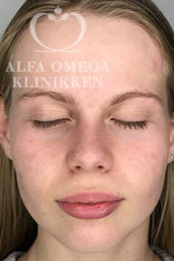 Efter behandling med Kleresca mod acne og ar
