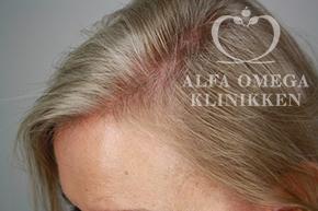 Før behandling med RepHair til hårvækst