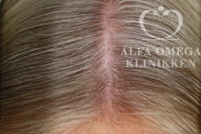 Efter behandling med vitaminer til hår