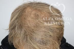Efter behandling med Rephair® hårbehandling i København