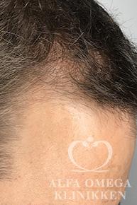 Før behandling med Mesoterapi til hår