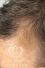 Før Rephair® hårbehandling mod tyndt hår