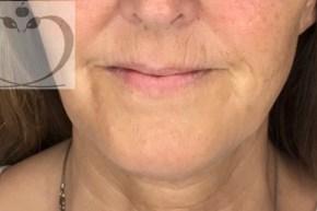 Efter Alfa Omega Klinikkens mini-ansigtsløft