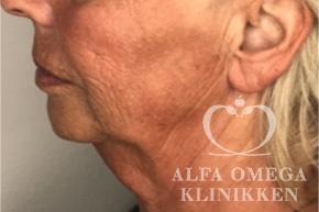 Før ansigtsløft og fjernelse af løs hud i ansigtet