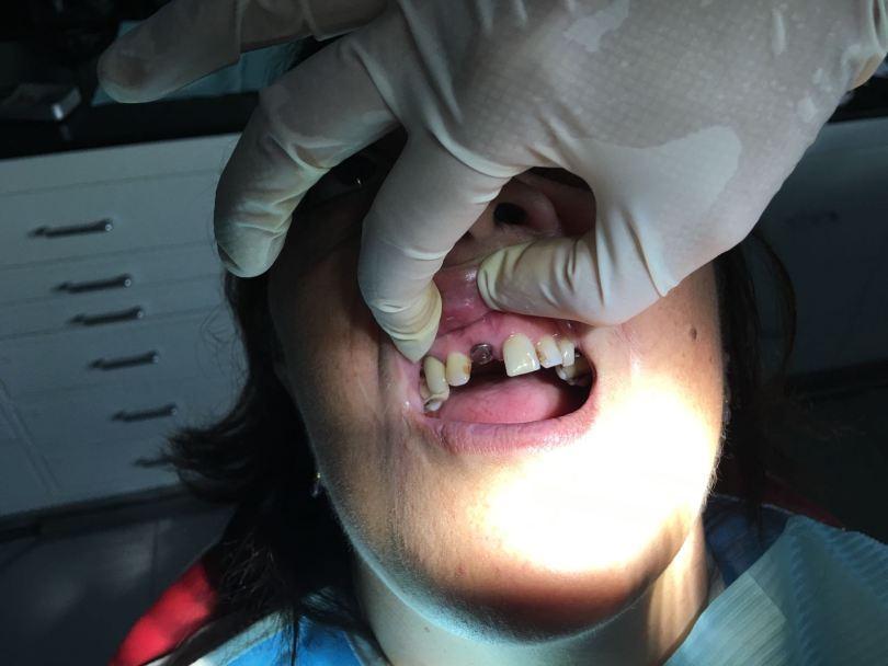 Implante corona