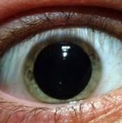DilatedPupilsm