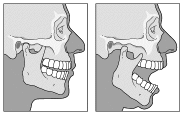 TMJdislocation.jpg