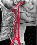 CerebrovascularAnatomy
