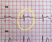 EKG V2