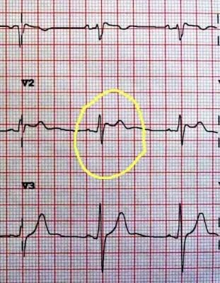 EKG_GooglePlus