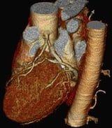 coronary_ct-angiogram1