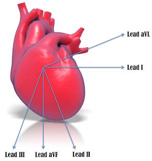 Heart & Lead aVL
