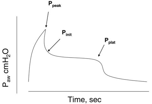 VentilatorPressuresGraph