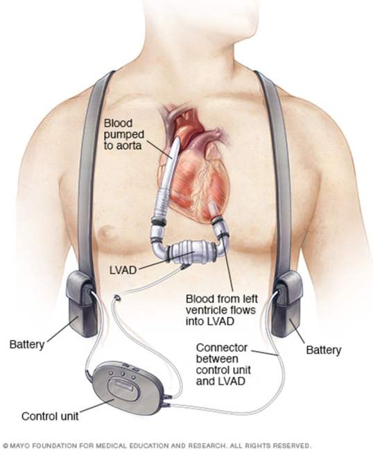 lvad-image-from-mayo
