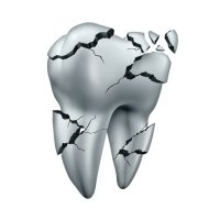dental cement for tooth fracture